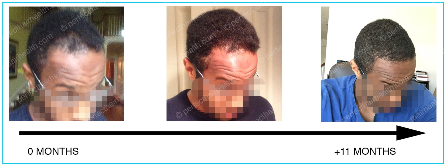 Natural hairline regrowth