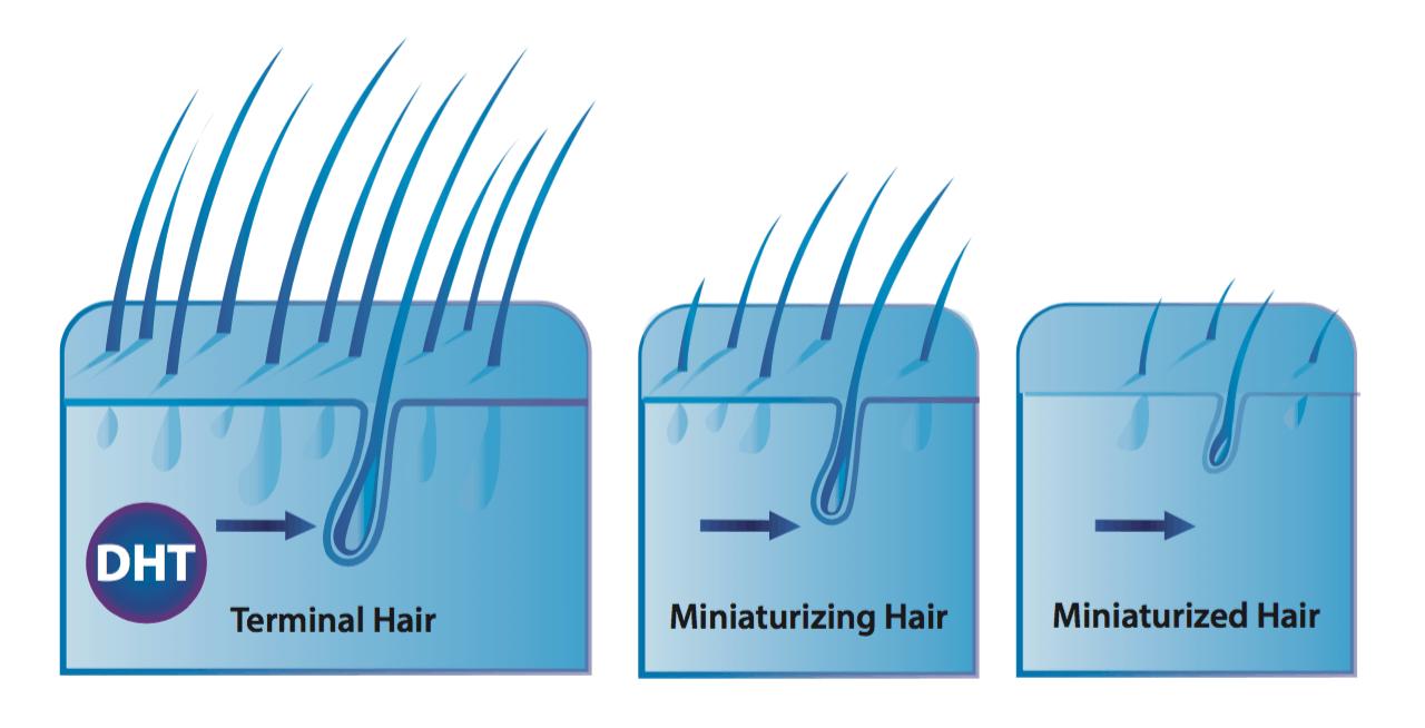 DHT shrinks hair
