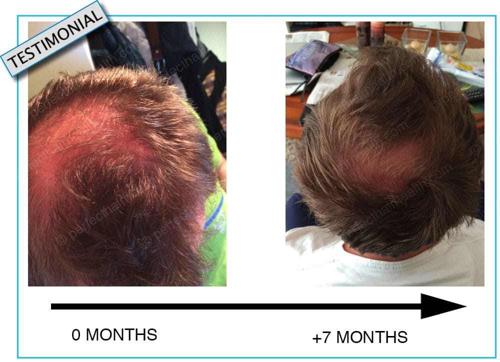How To Stop Hair Loss And Regrow New Hair Naturally
