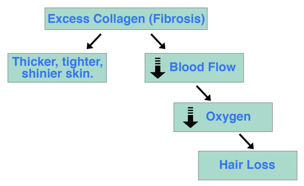 Fibrosis Blood Flow Oxygen Hair Loss
