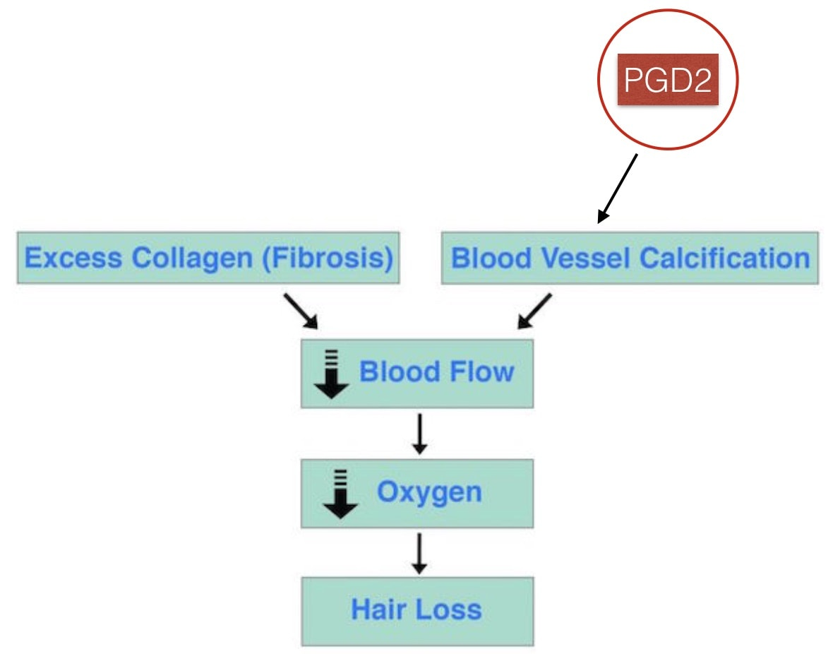 Prostaglandin D2 Calcification Hair Loss