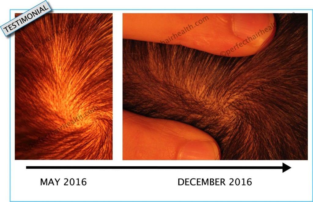 Massage Natural Hair Regrowth