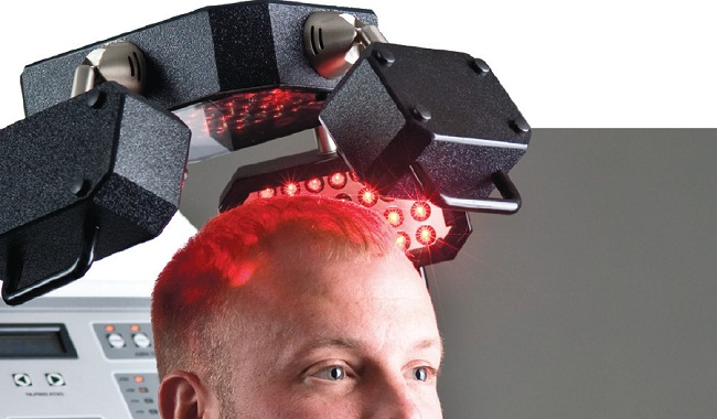low level laser therapy hair loss cost