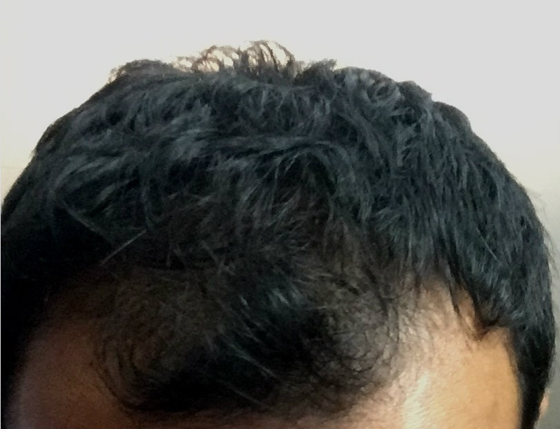 Rosemary Oil For Hair Loss Not So Fast See Photos Evidence