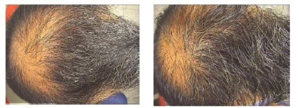 Brotzu for hair loss