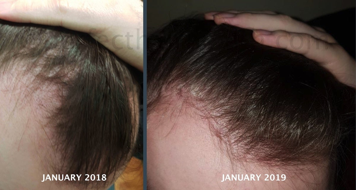 MTC-hairline-before-after-min
