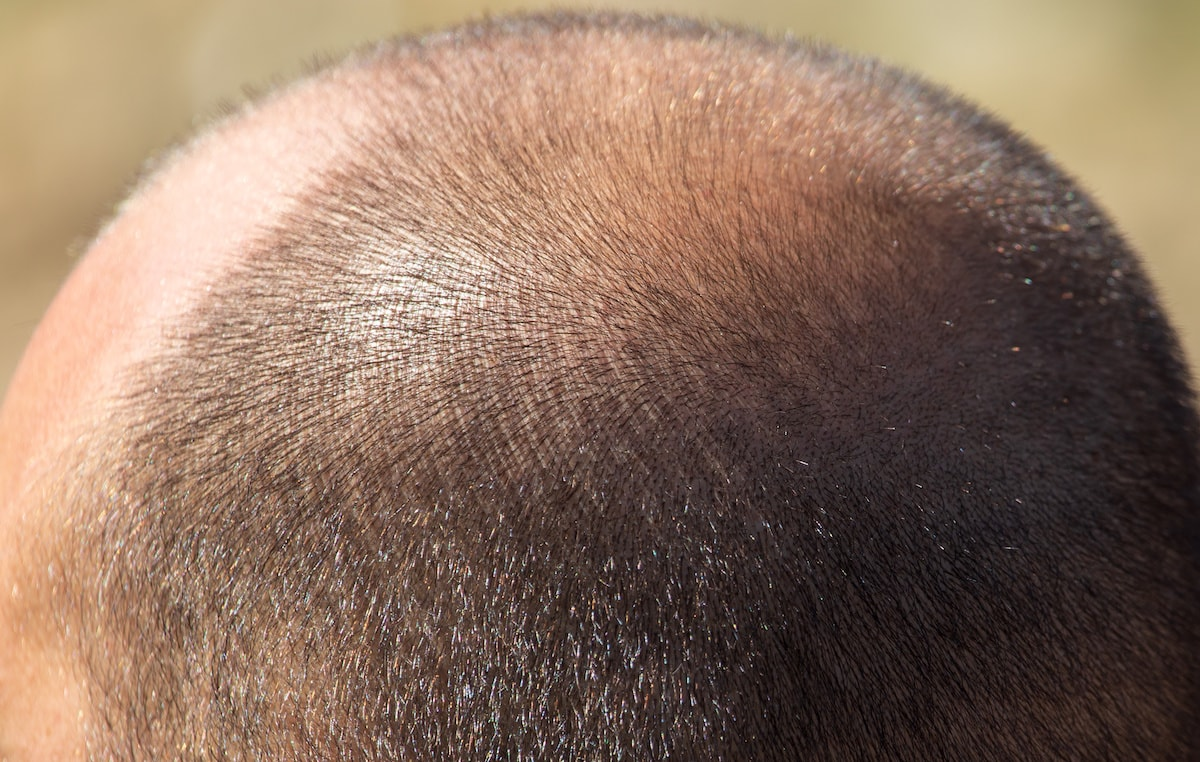 Vitamin B5 and Hair Loss