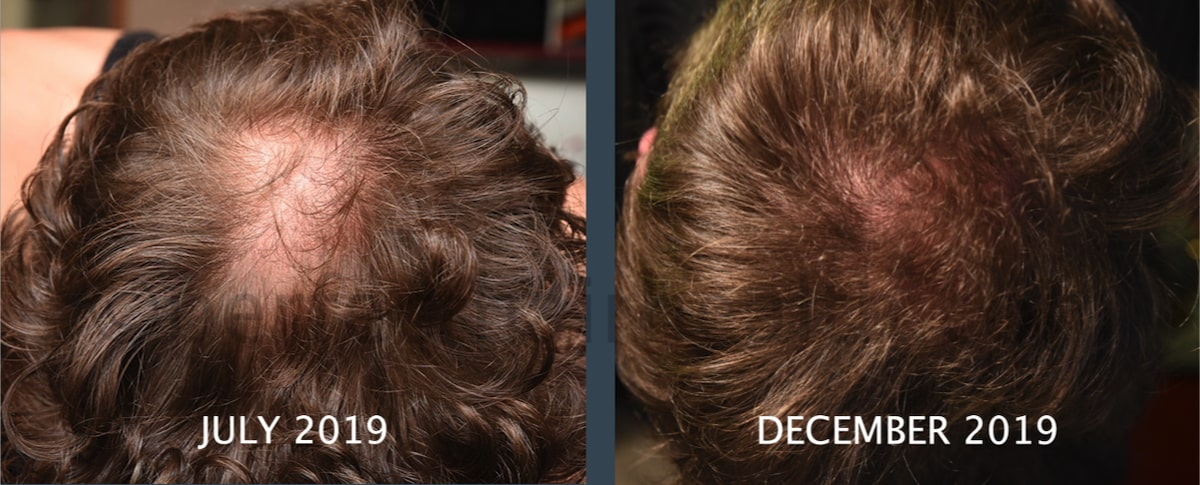 Crown thickening