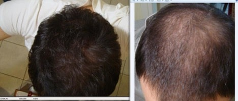 Microneedling Weekly Hair Regrowth