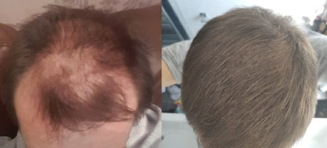Reddit Microneedling Hair Growth