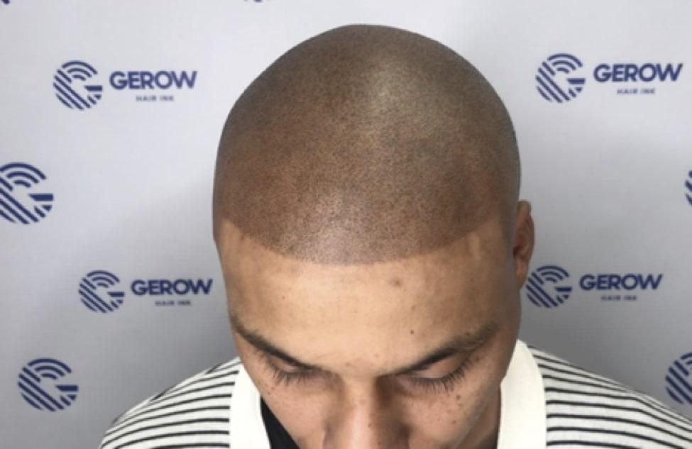 Scalp Micropigmentation – Bad Hairline