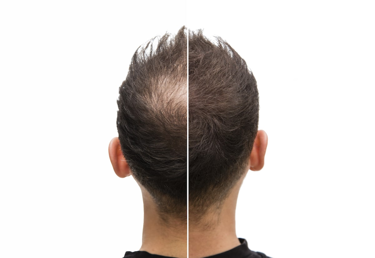 Scalp Micropigmentation For Hair Loss