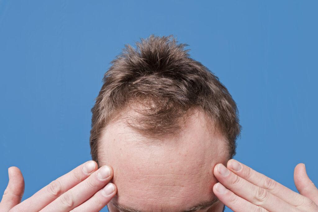 Hair follicle miniaturization in AGA