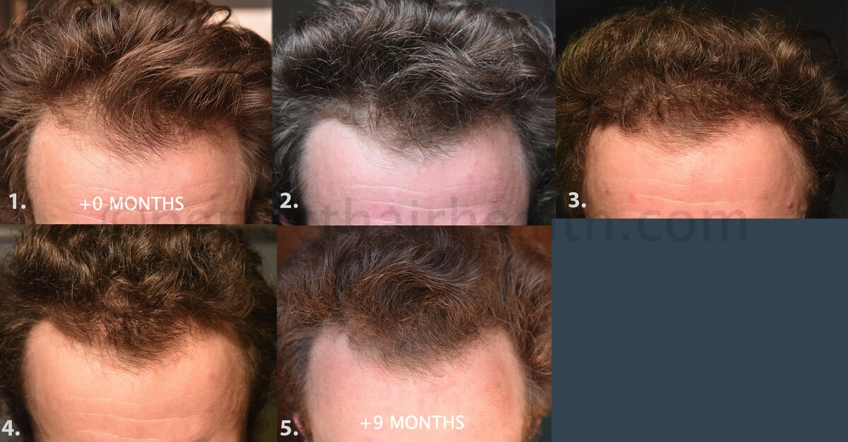 Chris-hairline regrowth-min