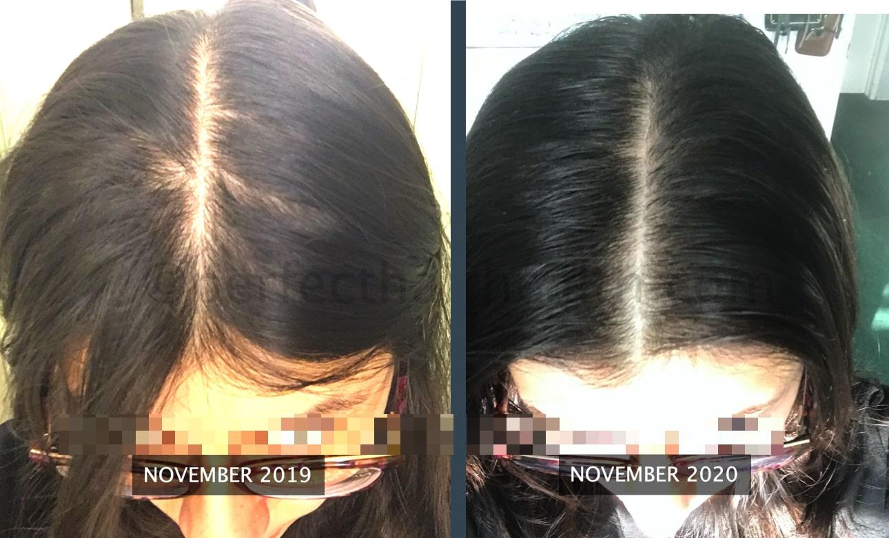 Rico-hair thickening-min
