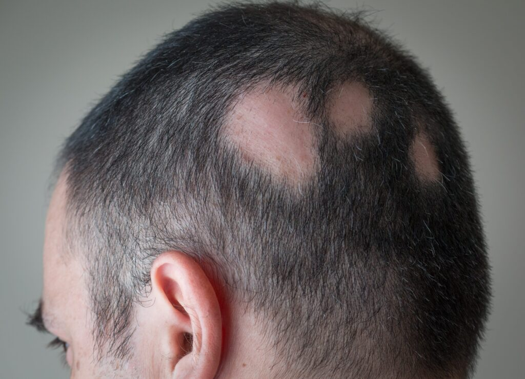Helminth Therapy for Hair Loss