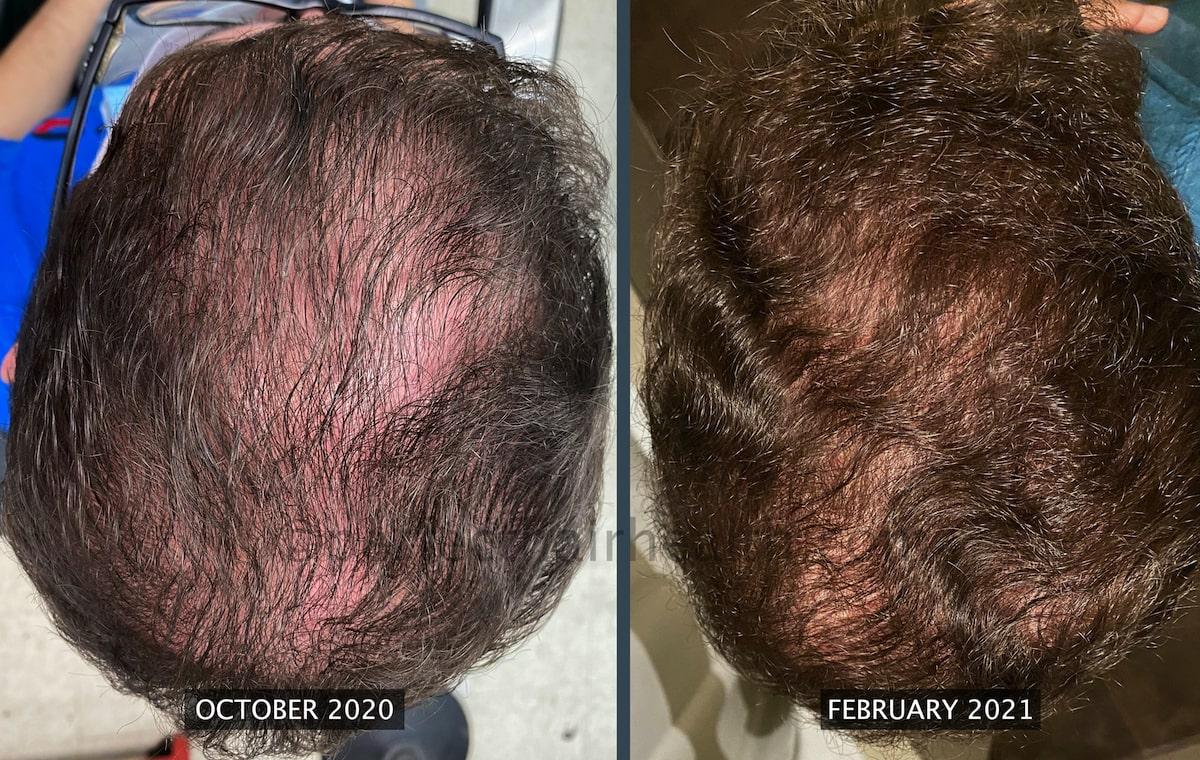 Rabih-hair density increase-min